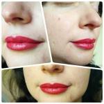 Перманентный макияж губ. Сразу после.